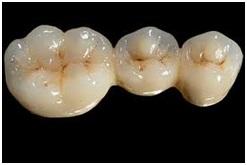 Clinica Medica Dentaria Maia Medicina Dentaria Proteses Dentarias